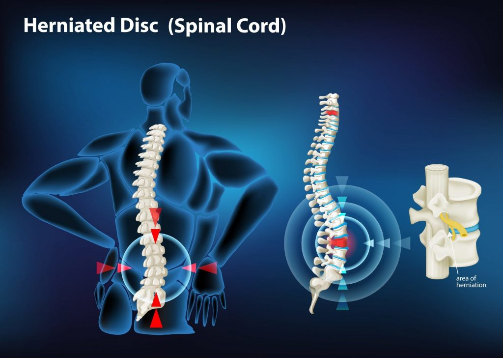 An illustration of a herniated disc in the spinal cord